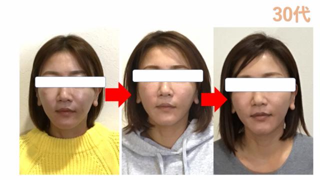 小顔の変化
